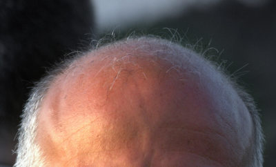 Scientists in Texas Discover What's Behind Graying and Baldness