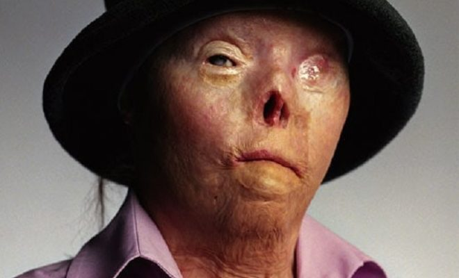 Spokeswoman for Drunk Driving Awareness Campaigns Dies at Age 40