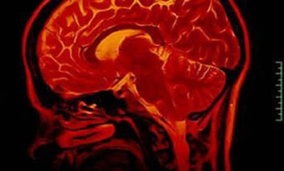 Tapeworm Removed From Brain of a Texas Man After More Than a Decade