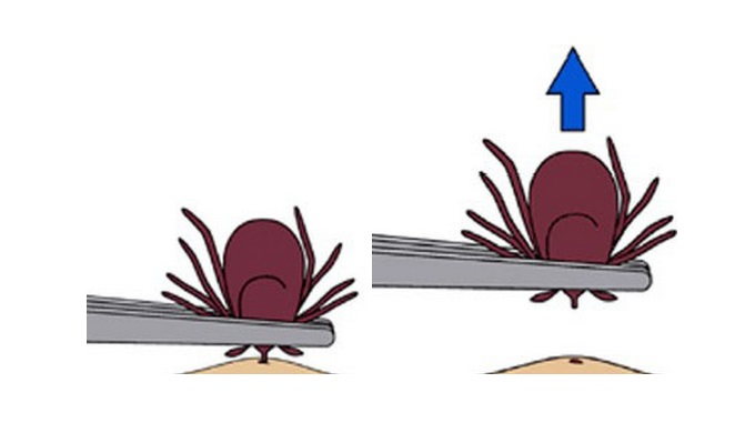 How to Remove a Tick from the CDC
