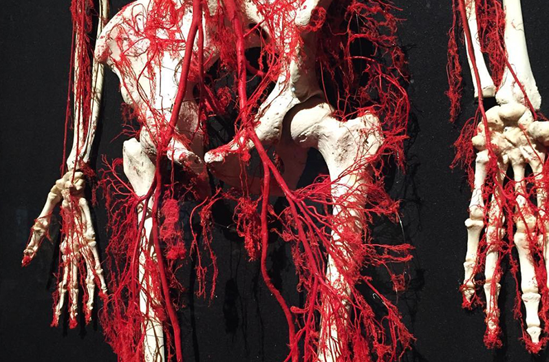 Our Body: The Universe Within is an educational touring human anatomy exhibition containing polymer impregnated organs and specimens, both healthy and diseased.