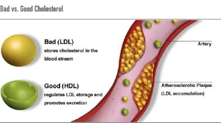 Cholesterol: Good, Bad & Ugly