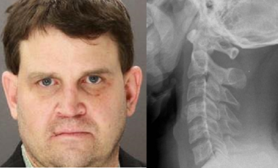 Dr. Death: The Texas Surgeon Who Paralyzed his Patients